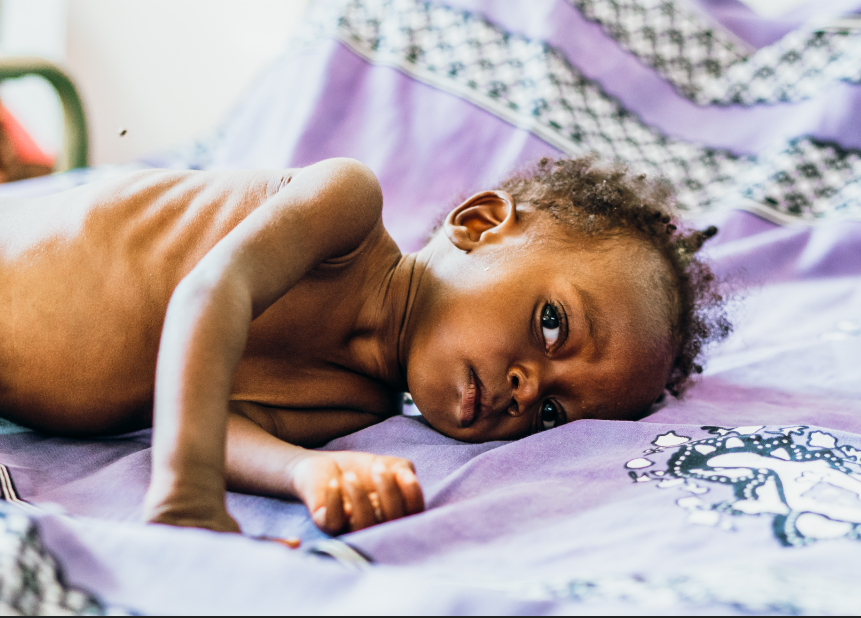 One Photo I Could Not Take - a malnourished baby girl lying on the clinic bed.