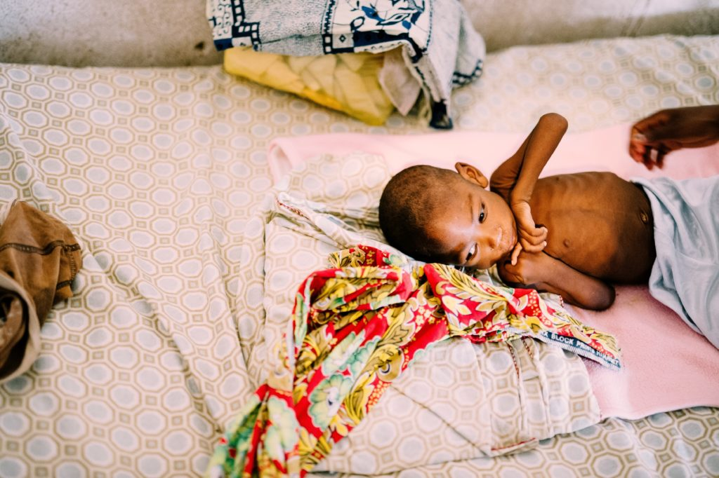 Severe Acute Malnutrition - More Than Being Hungry - a malnourished baby boy in our malnutrition clinic.