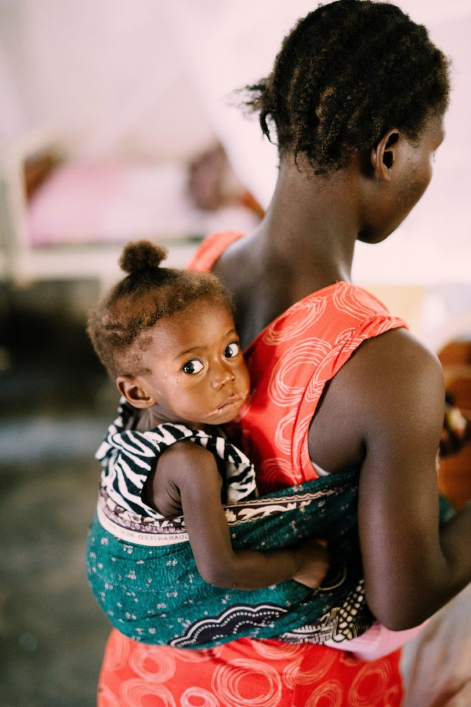 Severe Acute Malnutrition - More Than Being Hungry - Mother and her malnourished baby at our malnutrition clinic.